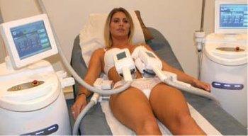 Femme allongée sur son dos durant une séance de cryolipolyse